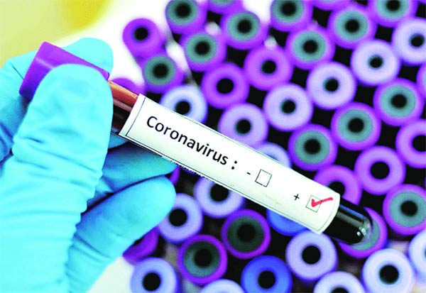Chennai, CoronaCases, Districtwise, Discharge, Covid-19 in Chennai, corona, coronavirus, covid-19, corona deaths, corona update, coronavirus update, coronavirus death count, corona toll, corona cases in TN, corona crisis, covid 19 pandemic, TAMIL NADU, chennai, TN news, corona death, coronavirus outbreak, covid-19 pandemic, corona in chennai, new corona cases, positive cases, chennai fights corona, tn news, tn fights corona, சென்னை, கொரோனா, பாதிப்பு, மாவட்ட வாரியாக, டிஸ்சார்ஜ்