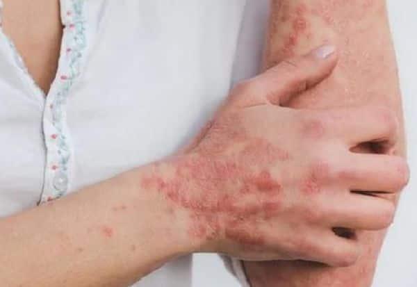 Skin Problem, Corona Virus, Covid 19, வைரஸ், மீண்டவர், புதிய சரும தொற்று