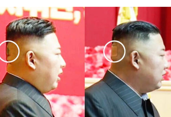 Kim Jong Un's Bandage And Spots On Head  தலை  பின்புறம் 'பேண்டேஜ்' : கிம்ஜோங் உன்,என்ன ஆச்சு ?  Add To Health Mysteries